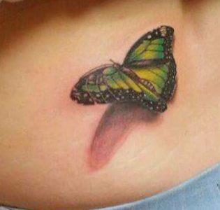 Hip butterfly